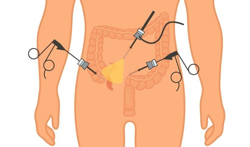 Лапароскопия аппендицит диета после операции